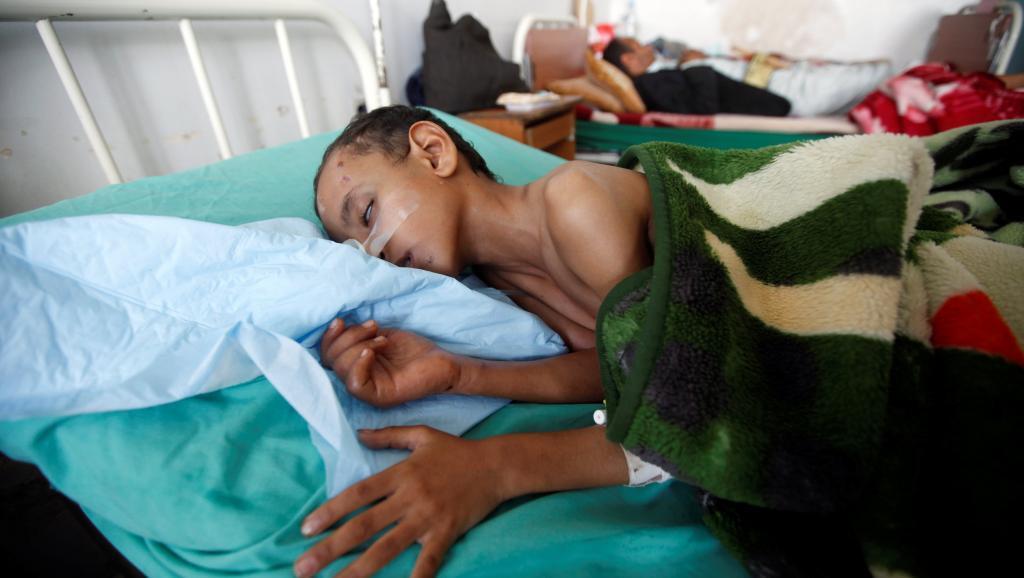 Dans un hôpital de Sanaa au Yémen, le 27 juillet 2017