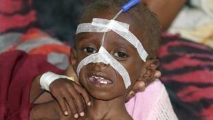 Un niño desnutrido en el hospital Banadir en Mogadiscio, capital de Somalia, el 22 de julio de 2011.