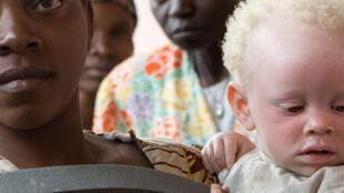 Une jeune femme porte son enfant atteint d'albinisme.
