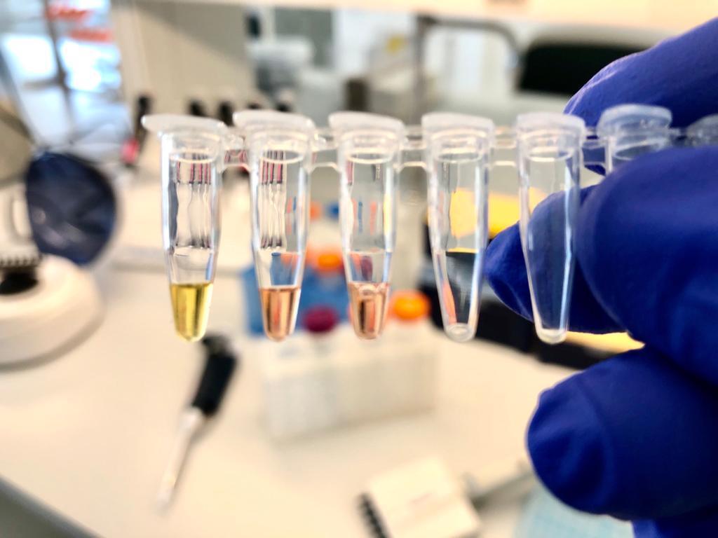 Teste colorimétrico à covid-19