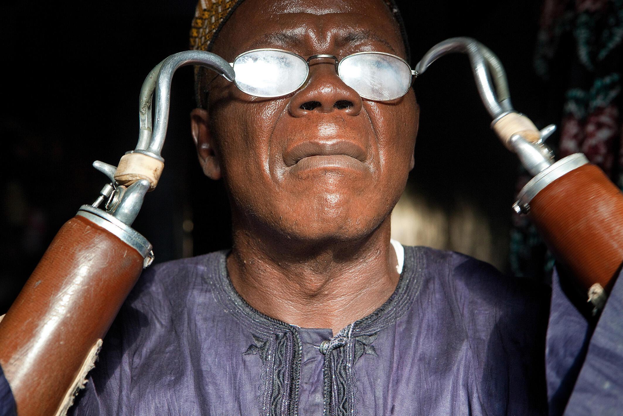 Sierra Leone, 2010. Jusu Jarka a eu les mains coupées en janvier 1999 par les rebelles du groupe armé RUF (Revolutionary United Front) soutenu par Charles Taylor. Jarka a été le premier Sierra-Léonais autorisé à voter sans identification des empreintes.