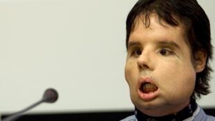 O espanhol Oscar é o primeiro paciente no mundo a receber um transplante total no rosto.