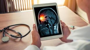 meningite cerveau
