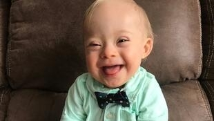 Masana sun ce yaro 1 ake samu da cutar 'Down Syndrome' dake hana kwakwalwar yara girma daga cikin akalla 850 da ake haihuwa a duniya.