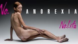 Страдающая анорексией французская модель Изабель Каро во время кампании против анорексии в Италии, 2007.