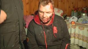 Le militant Dmytro Boulatov s'adressant aux journalistes après avoir été retrouvé près de Kiev, le 30 janvier 2014.