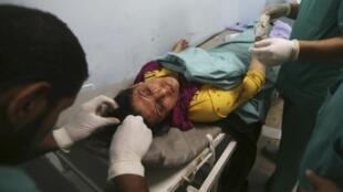 Une femme palestinienne, qui selon des sources médicales a été blessée dans un raid aérien israélien, dans un hôpital de Khan Younis, dans le sud de la bande de Gaza, le 8 juillet 2014.