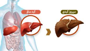برای شنیدن توضیحات دکتر مسعود میرشاهی، متخصص سرطانشناسی در پاریس، بر روی تصویر کلیک کنید.