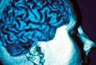 Ученые разрабатывают технологии лечения опухолей головного мозга лазером.