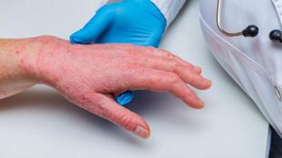 Quelles sont les causes de l'apparition d'un psoriasis?