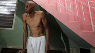 Кубинский диссидент Гильермо Фариньос на восьмой день сухой голодовки 5 марта 2010 г.