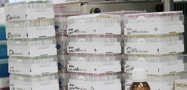 Los investigadores probaron más de 3.000 fragmentos de virus para determinar cuáles son reconocidos por el sistema inmunológico humano.