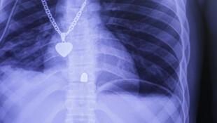 Radiografía del tórax de un paciente herido de un disparo con pistola y atendido en el nuevo hospital de MSF en Tabarre. La bala se alojó en la columna vertebral.