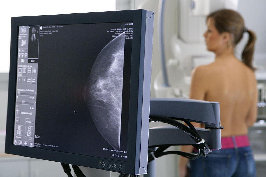 Traitement permettant d'améliorer considérablement le taux de survie des femmes de moins de 60 ans souffrant du type le plus courant de cancer du sein.