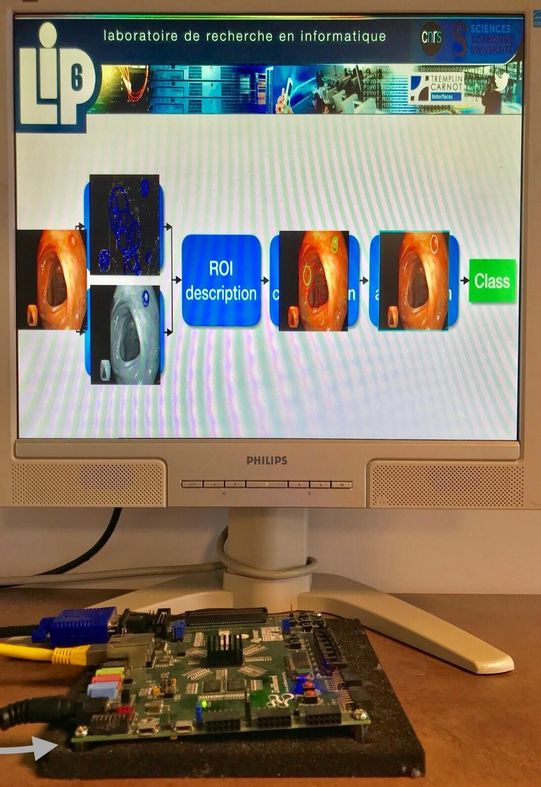 Los investigadores han hecho macroprototipos, aquí una tarjeta que integra el algoritmo para procesar las imágenes.