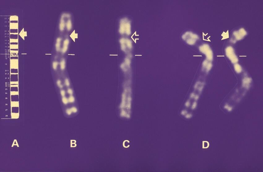 Na foto A e B: cromossomo normal, C: cromossomo com a doença.
