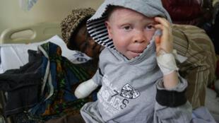 Mtoto mwenye Ualbino ambaye alinusurika kuuawa nchini Tanzania, akiwa hospitalini