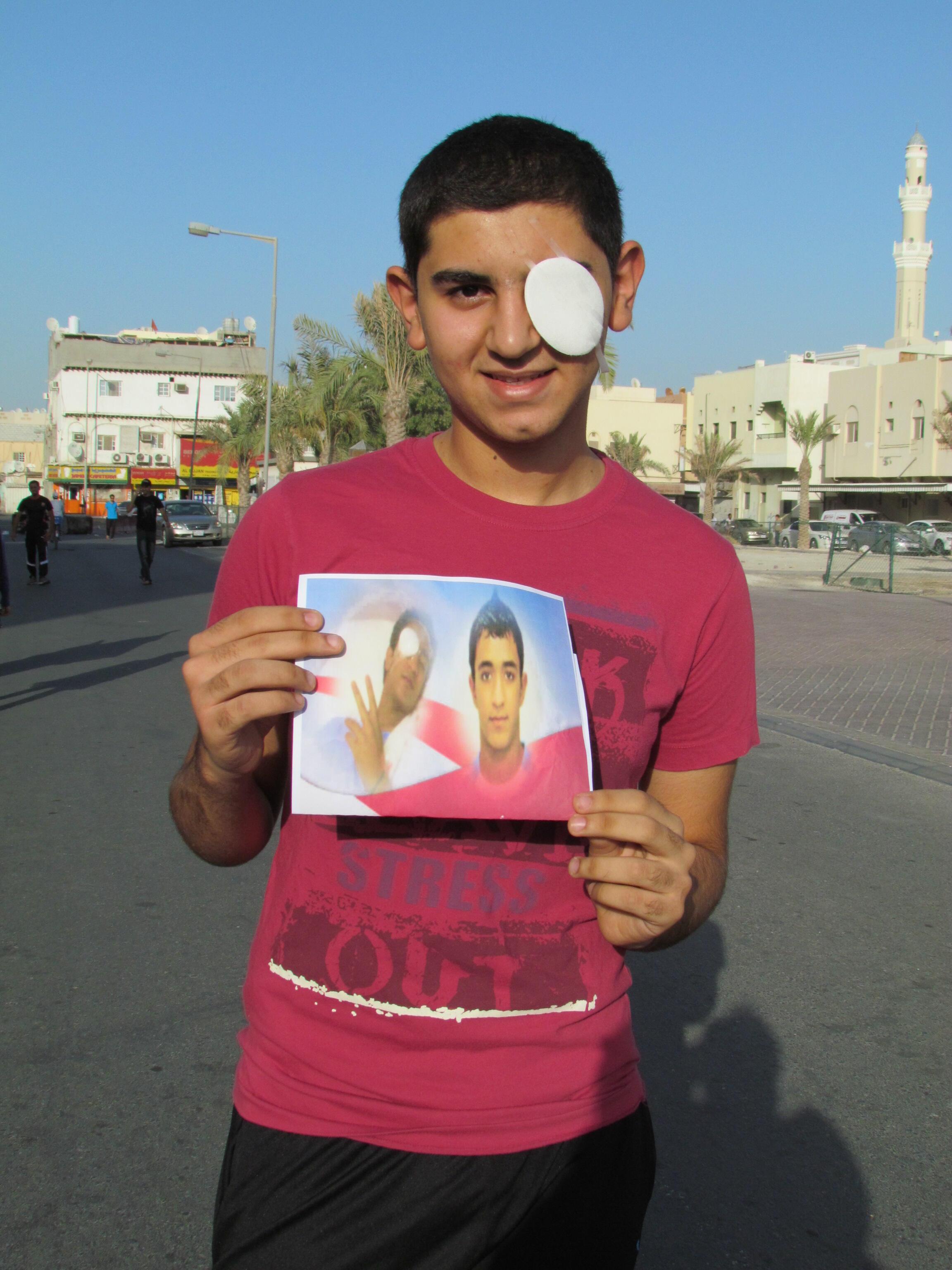 Mohamed, 16 ans, a perdu un oeil lors d une manifestation au cours de laquelle, il a recu une balle en caoutchouc tirée par la police.