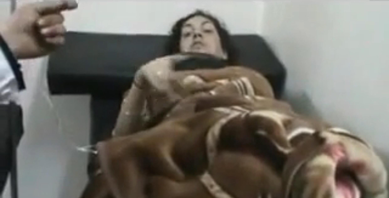 A jornalista francesa Edith Bouvier, ferida num bombardeio em Homs, tem duas fraturas no fêmur e precisa ser operada.