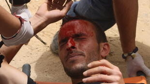 A protester who was hit in the head with a tear gas canister 1 May 2012