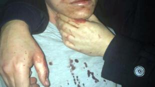 Abdulgadir Masharipov, suspeito detido pelos serviços de segurança turcos, confessou ser o autor do massacre do Ano Novo em uma boate de Istambul.