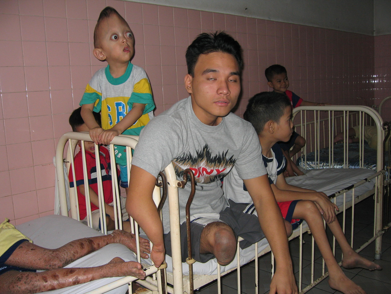 Niños víctimas del Agente Naranja, en la Aldea de la Paz de Tu Du, en la Ciudad Ho Chi Minh.