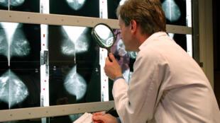 Un médecin examine une mammographie.
