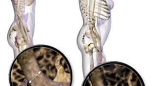Hình minh họa miêu tả tư thế đứng bình thường và bệnh loãng xương.