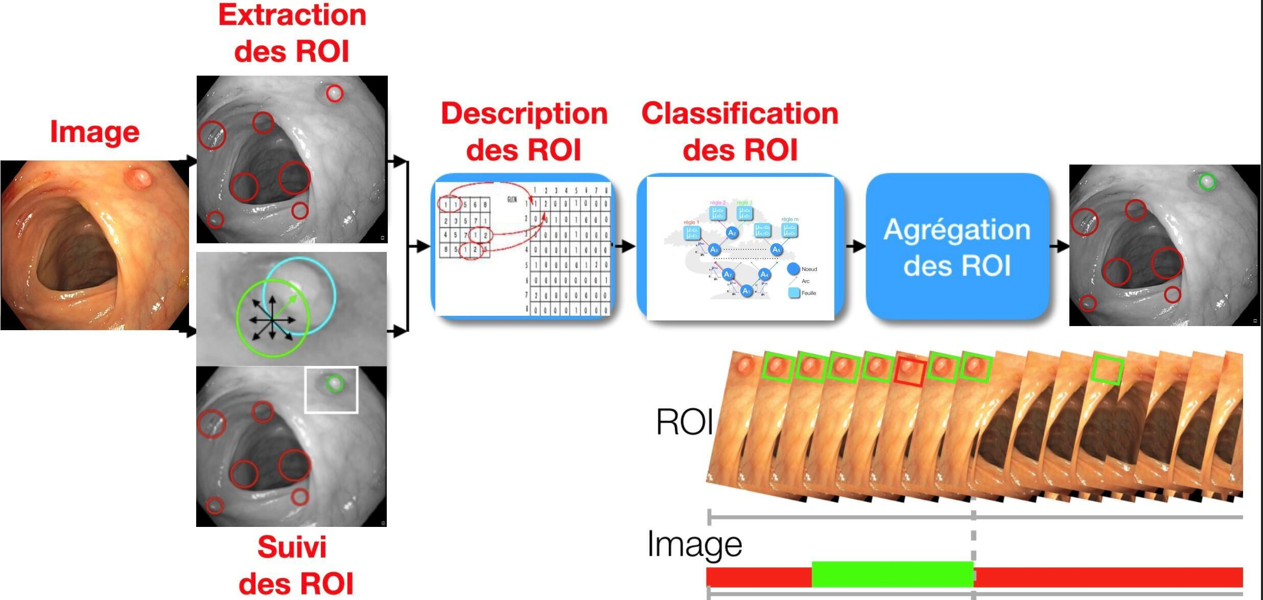 Los ingenieros de Lip6 desarrollan algoritmos para poder interpretar correctamente las imágenes captadas por la cápsula.