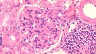 Imagen de glomerulonefritris, una patología renal frecuente en lupus eritematoso sistémico.